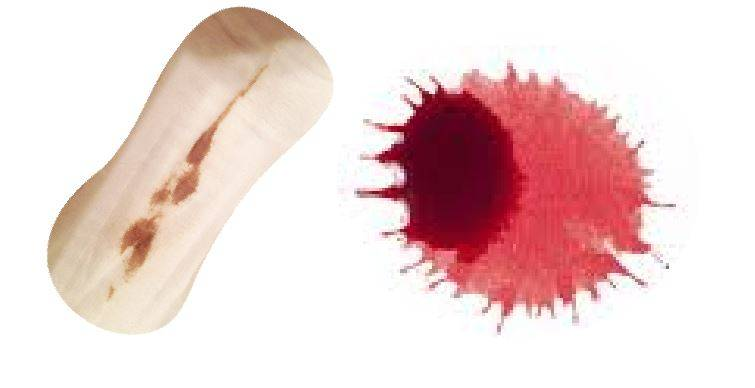 Об этом может рассказать цвет крови во время месячных!