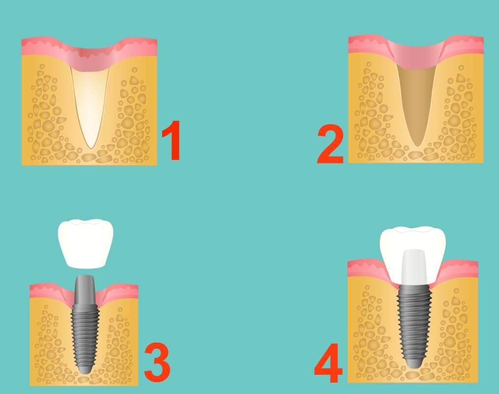 Имплантация зубов: сколько времени занимает каждый из этапов