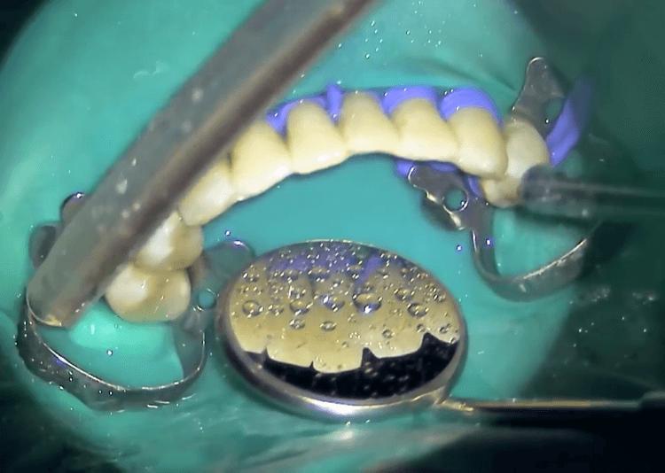 Что такое шинирование и как с его помощью сохранить зубы