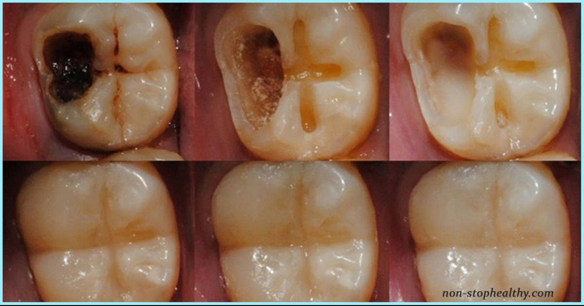 Кариес на передних зубах: профилактика и лечение