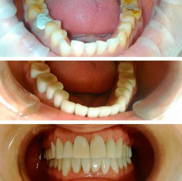 Какие зубы лучше вставить: виды и методы установки