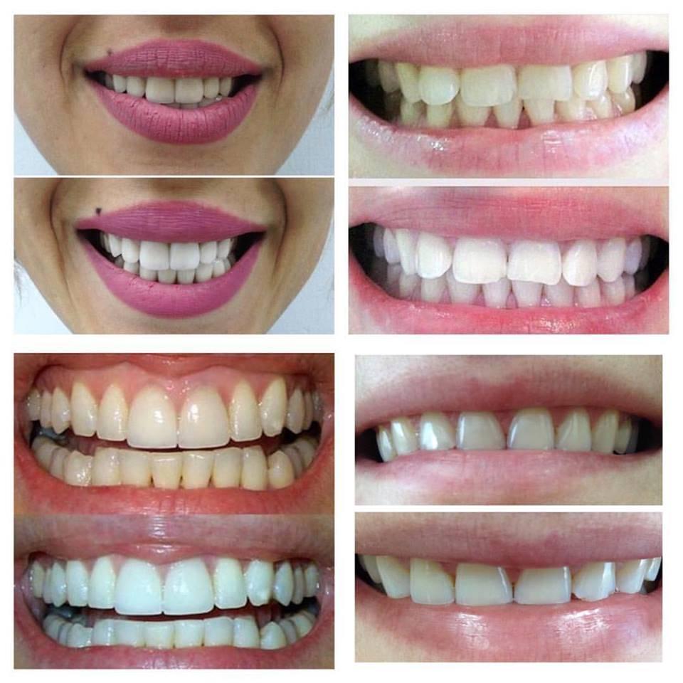 Наращивание зубов: как наращивают, фото до и после, плюсы и минусы