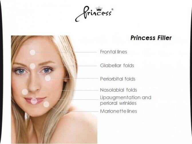 Princess rich (биоревитализация): состав препарата и отзывы о нем