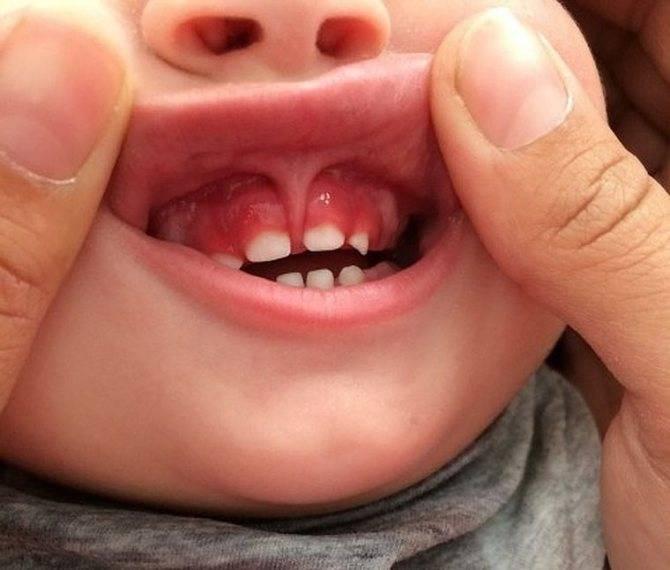 Новообразование во рту: киста на десне у ребенка