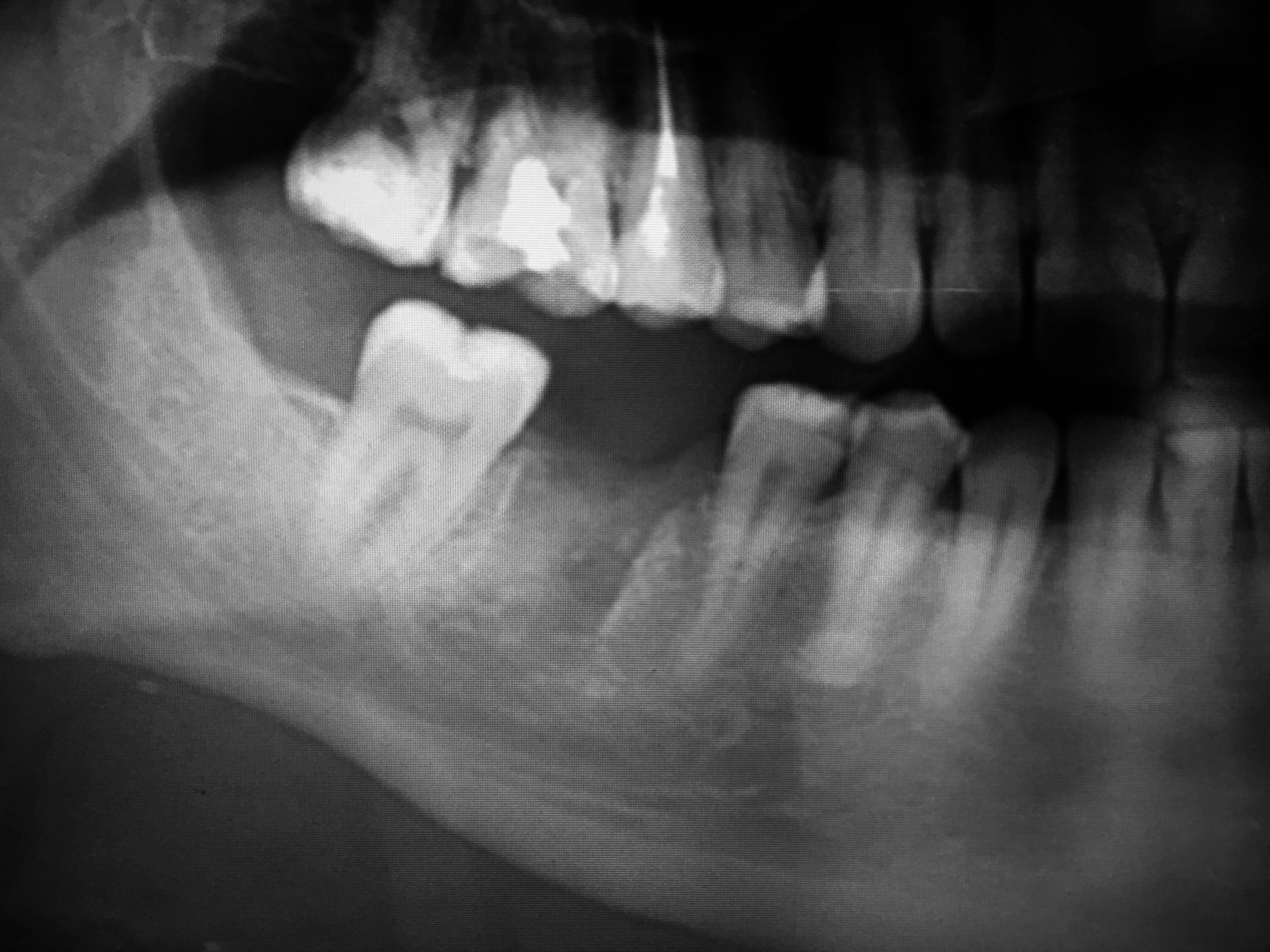 Киста на корне или десне зуба