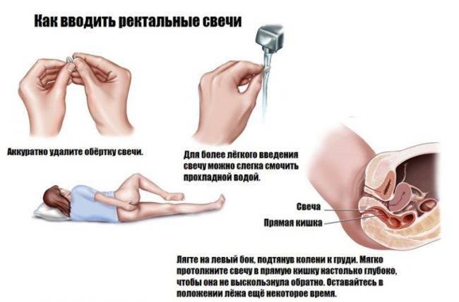Как правильно ввести вагинальную свечу инструкция