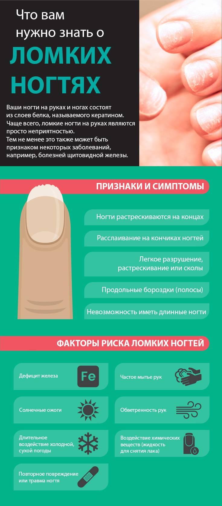 Укрепление слоящихся ногтей дома. причины и лечение проблемы.