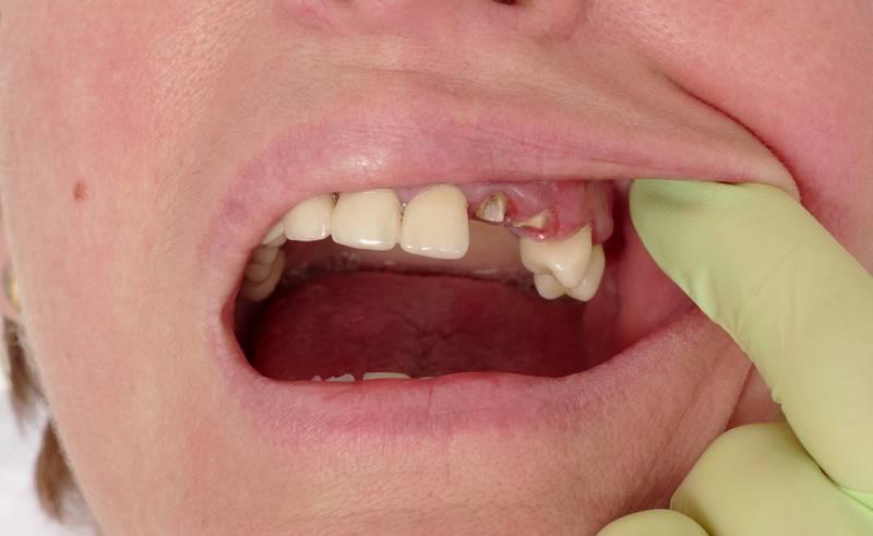 Если болит зуб может быть температура 37