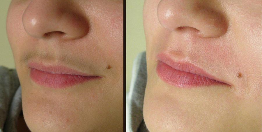 Как убрать усики у девушек в домашних условиях. как убрать усики над губой? эффективные способы и методы удаления