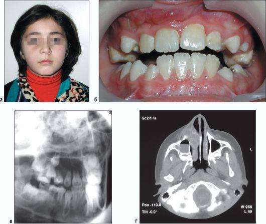 Периостит нижней и верхней челюстей: симптомы, причины, диагностика и лечение