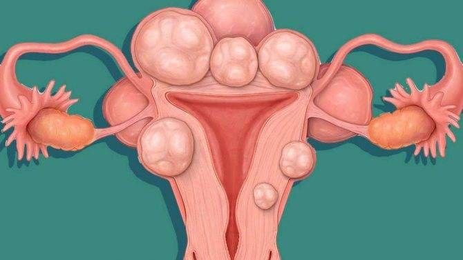 Лечение миомы матки гомеопатическими препаратами