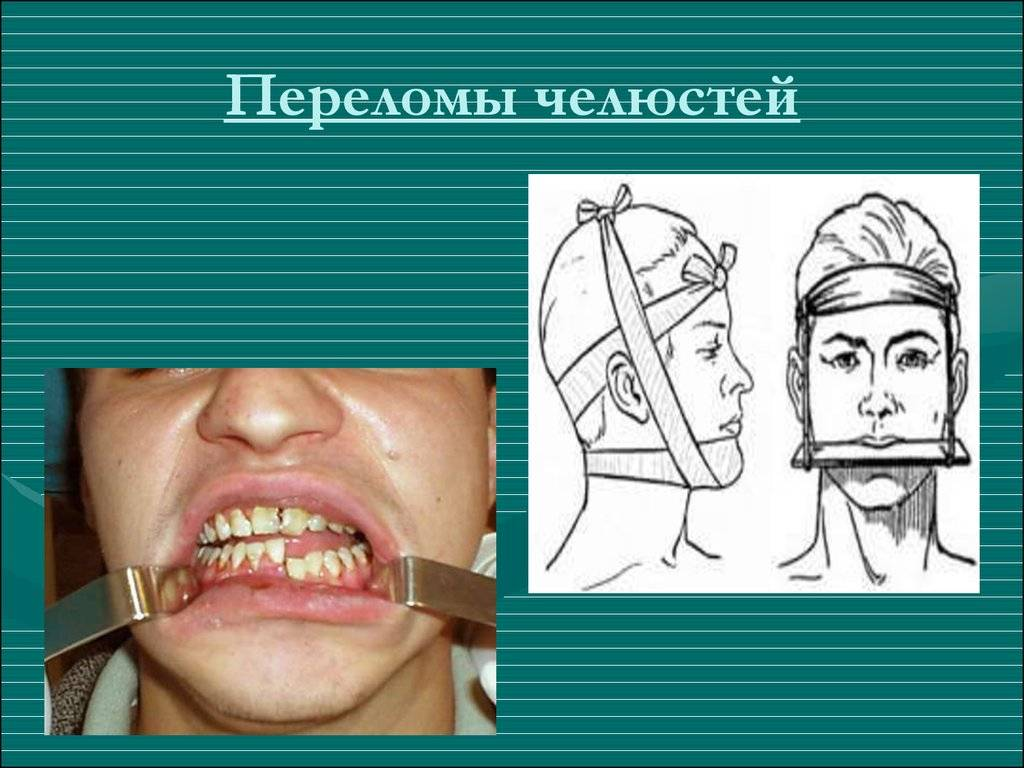 Переломы нижней челюсти