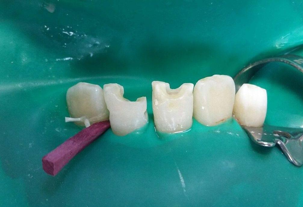 Болит зуб после пломбирования: почему это происходит?