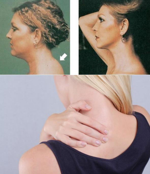 Как избавиться от холки на шее при остеохондрозе?