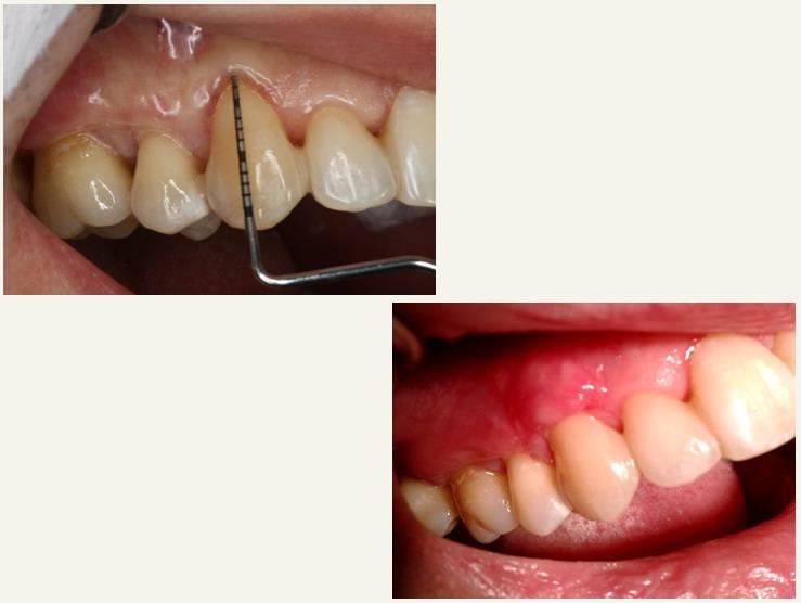 Для чего в десне устанавливается дренаж, как выглядит разрез после удаления зуба и при флюсе?