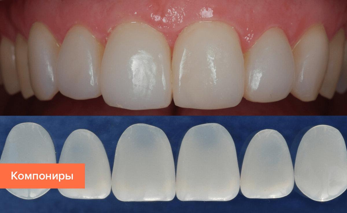 5 методов препарирования зубов под виниры