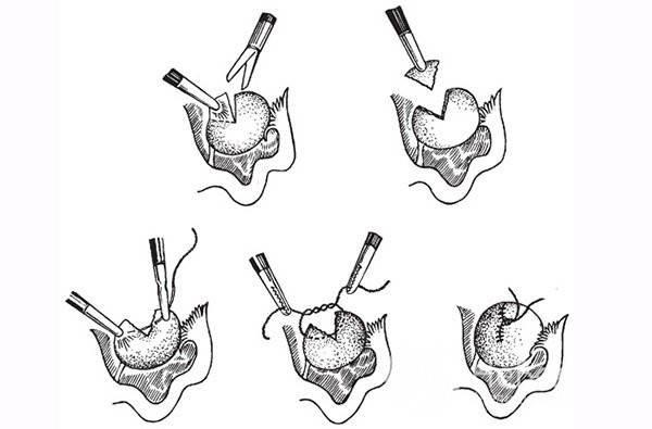 Проведение операции при бартолините и восстановление после нее