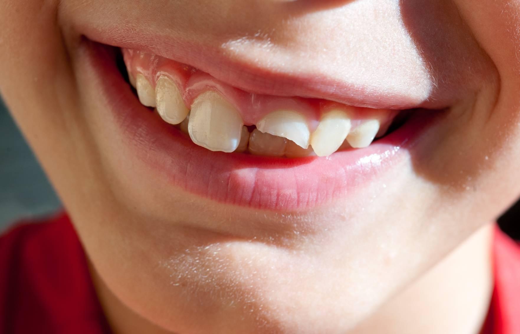 Основные причины, почему крошатся зубы