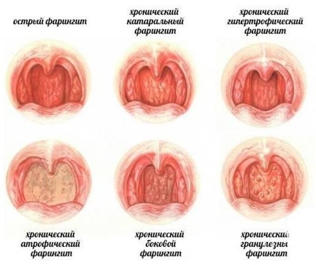 На задней стенке горла красные пупырышки болит горло
