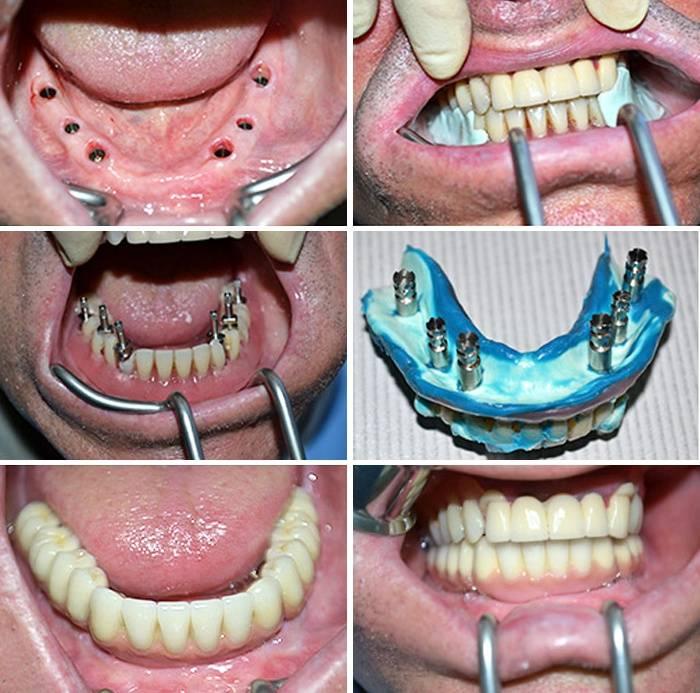 Можно ли ставить брекеты на пломбированные зубы