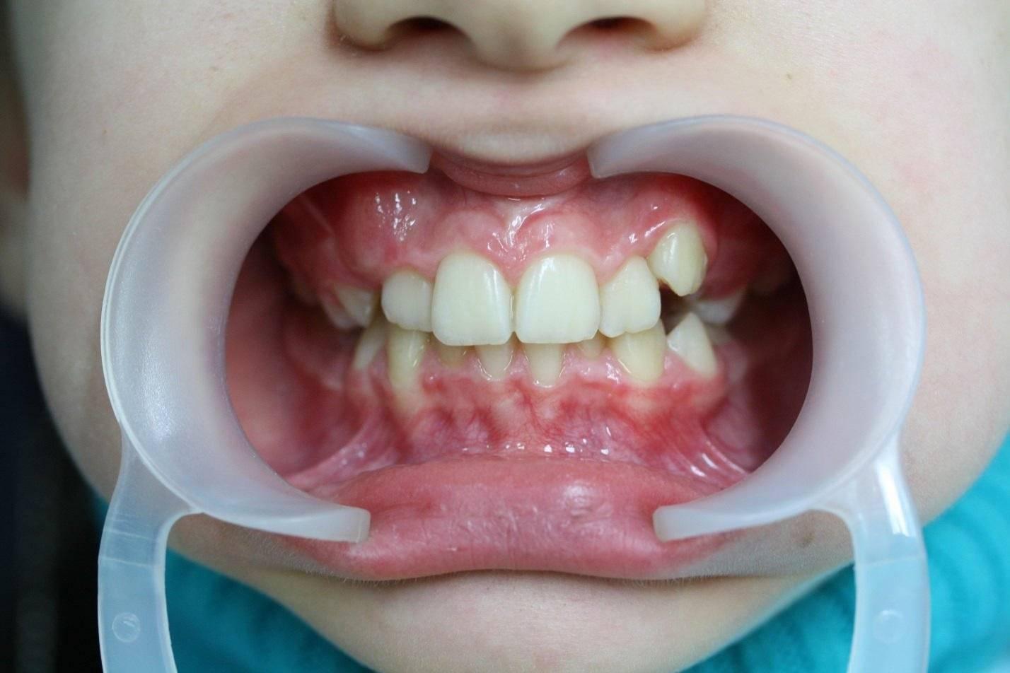 Как долго лезут клыки у ребенка: болезненные симптомы