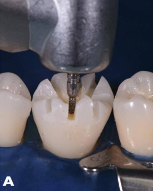 Обточка зубов под виниры. методы препарирования. фото