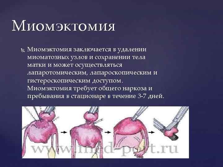 Удаление миомы матки лапароскопическим методом какой наркоз