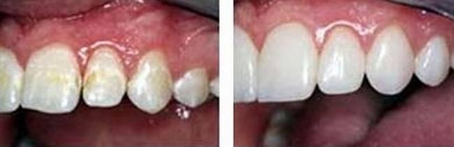 Как восстановить зубную эмаль – самые популярные способы