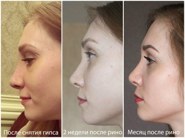 Реабилитация после ринопластики: особенности по дням, фото до и после