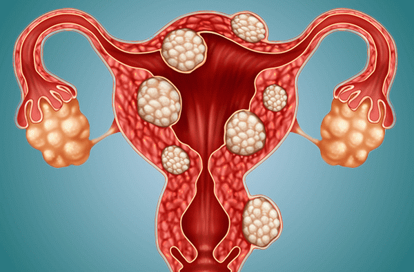 Эндометриоз миома и полип матки