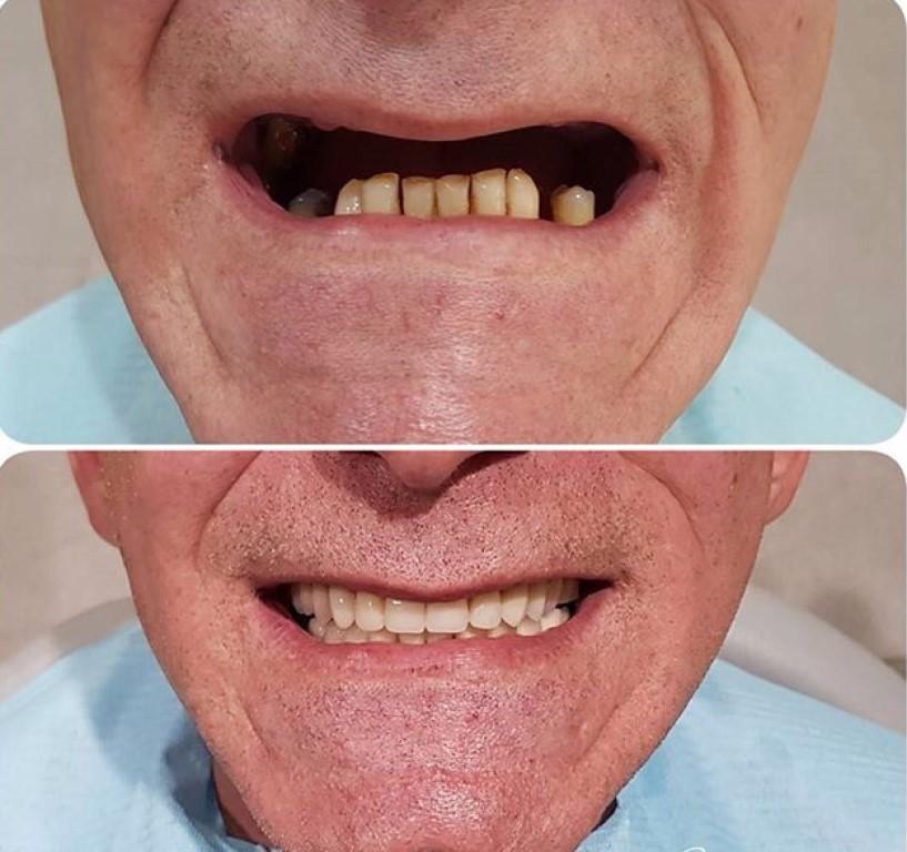 По закону на протезирования зубов сколька гарантия