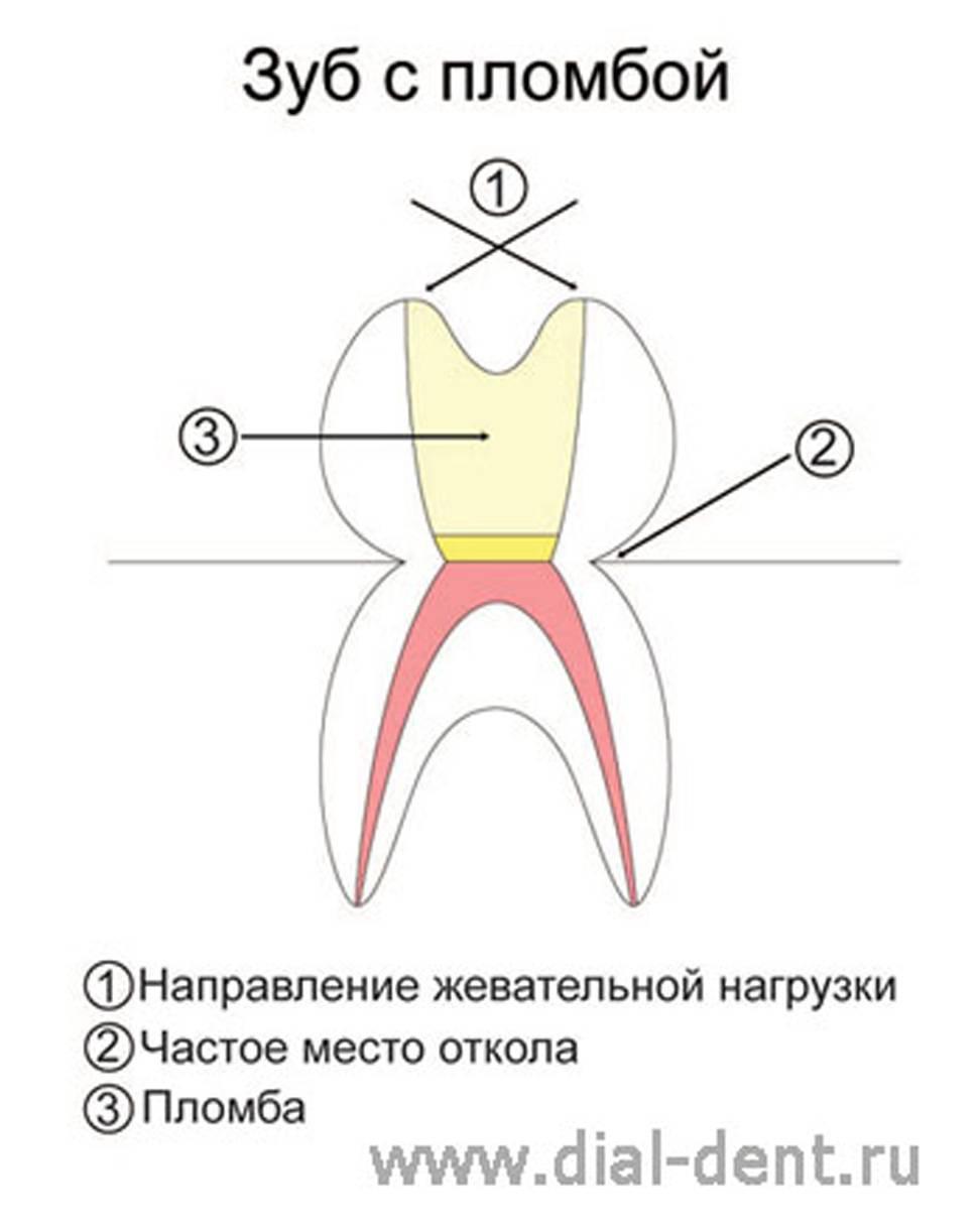 Что делать, если зуб реагирует на горячее и холодное после пломбирования