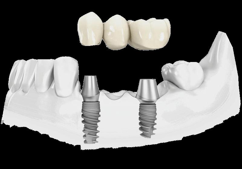 Что лучше имплант, мост или коронка: плюсы и минусы каждого метода