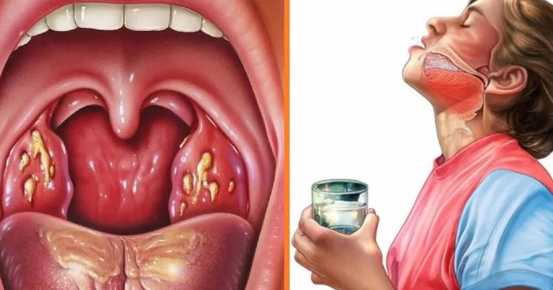 Симптомы стоматита в горле и как его лечить: эффективные препараты