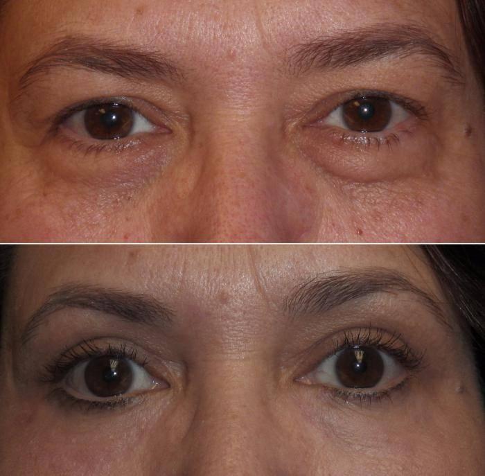 Гепариновая мазь от морщин и прыщей: особенности применения в косметологии