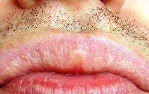 Белые губы