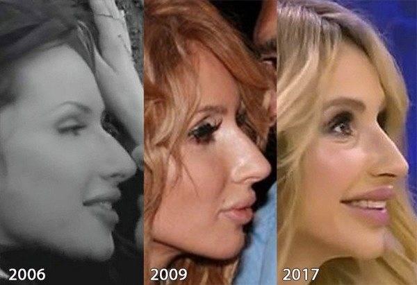 Анастасия ивлеева до и после пластики груди и губ – фото и все операции девушки элджея