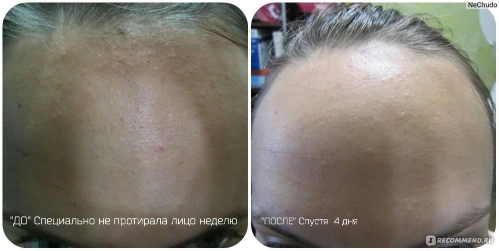 Настойка календулы от прыщей на лице: применение, отзывы