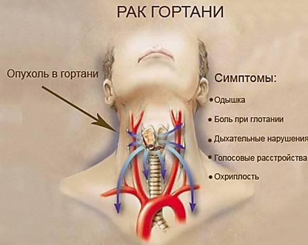 Причины боли в основании языка