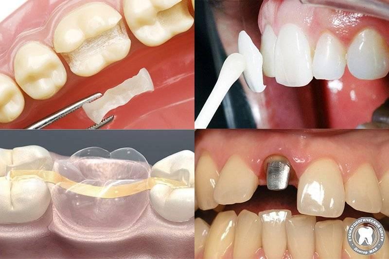 Хирургическая подготовка перед протезированием, процедура удаления зубов