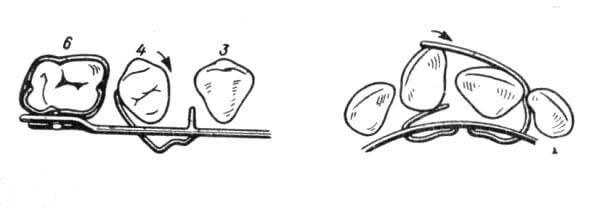 Назначение и принцип работы аппарата шварца