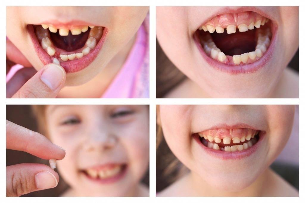 Что делать, если у ребенка не выпал молочный зуб, а новый коренной долго не растет или уже вырос преждевременно?