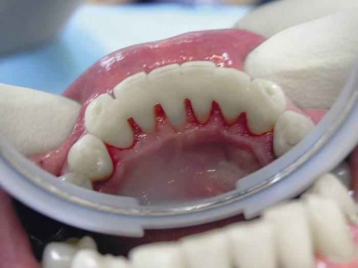 Шинирование подвижных зубов