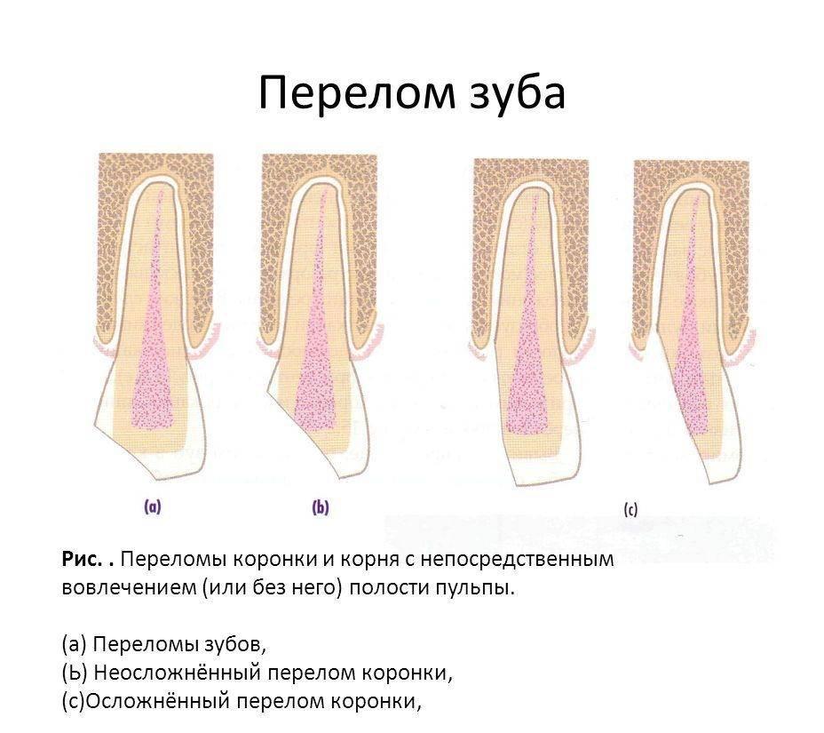 Перелом в средней части корня зуба сопровождается