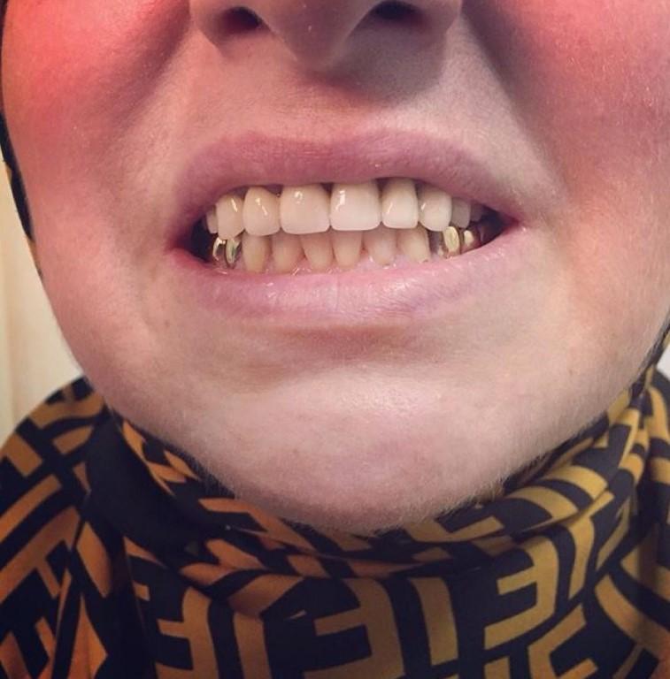 Гарантия на стоматологические услуги: разбираем нюансы