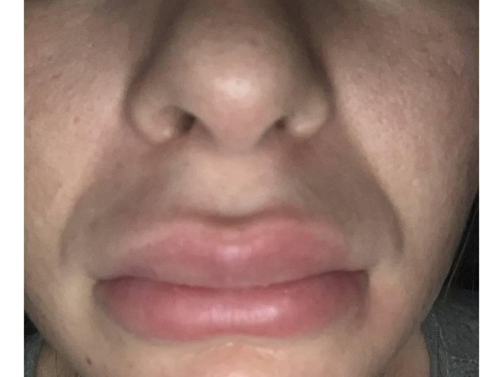 Причины и способы лечения опухлости губ