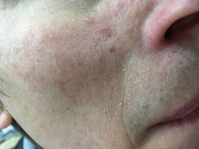 Сыпь на лице у женщин. причины, лечение, диета, что делать если кожа чешется