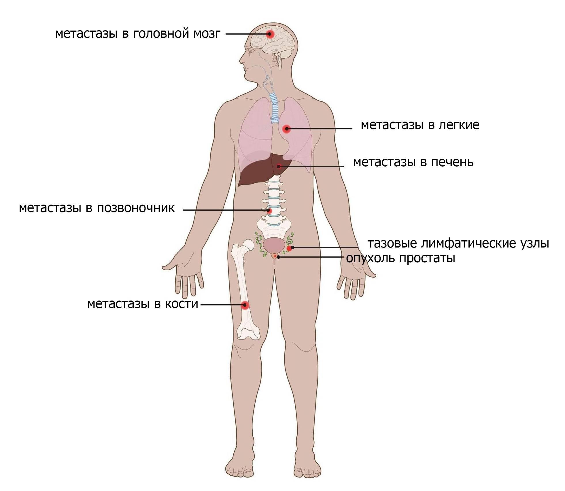 Рак молочный железы: симптомы и признаки, стадии, лечение, прогноз