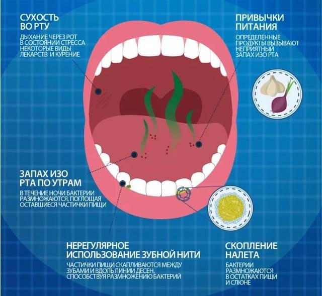 Причины и способы лечения гнилостного запаха изо рта