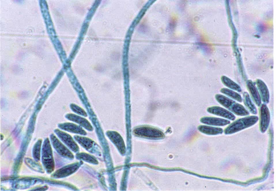 В мазке обнаружены споры и нити мицелия
